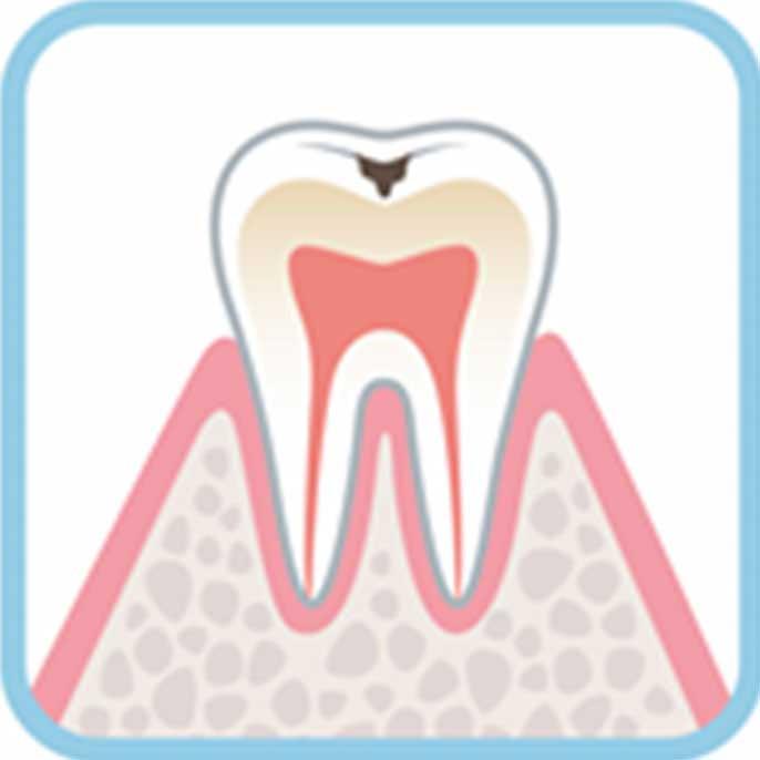 虫歯の進行度合い軽度:C1の状態例