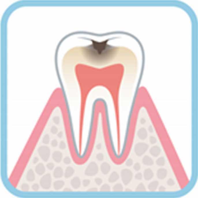 虫歯の進行度合い中度:C2の状態例