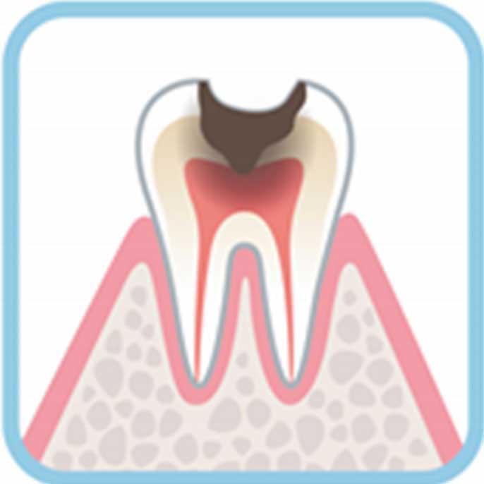 虫歯の進行度合い重度:C3の状態例