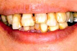 歯周病で損なわれた審美性を回復前