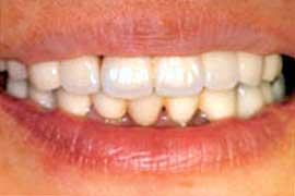 歯周病で損なわれた審美性を回復後