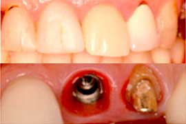 前歯部の審美性をプロセラで回復前