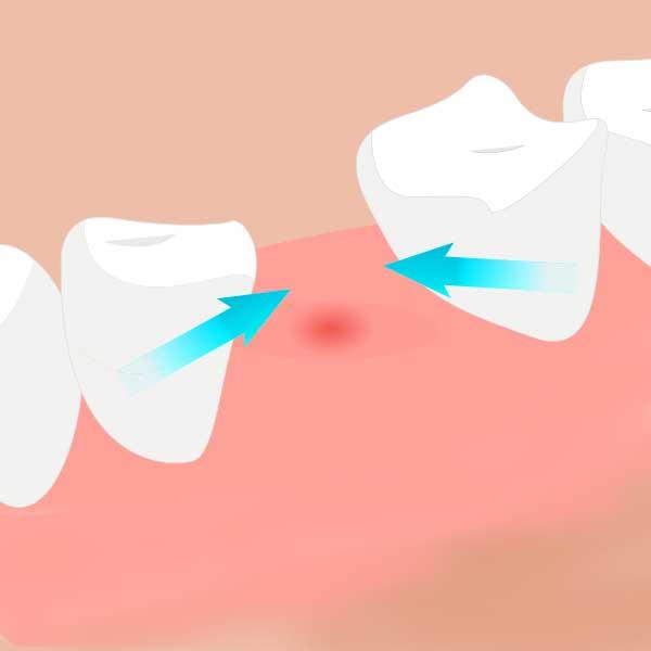 歯がない箇所に、周囲の歯が倒れてくる