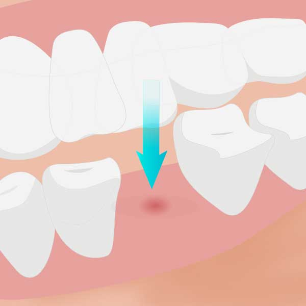 噛み合う歯が伸びてくる