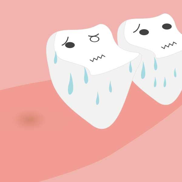 他の歯に負担をかけ、寿命を縮める