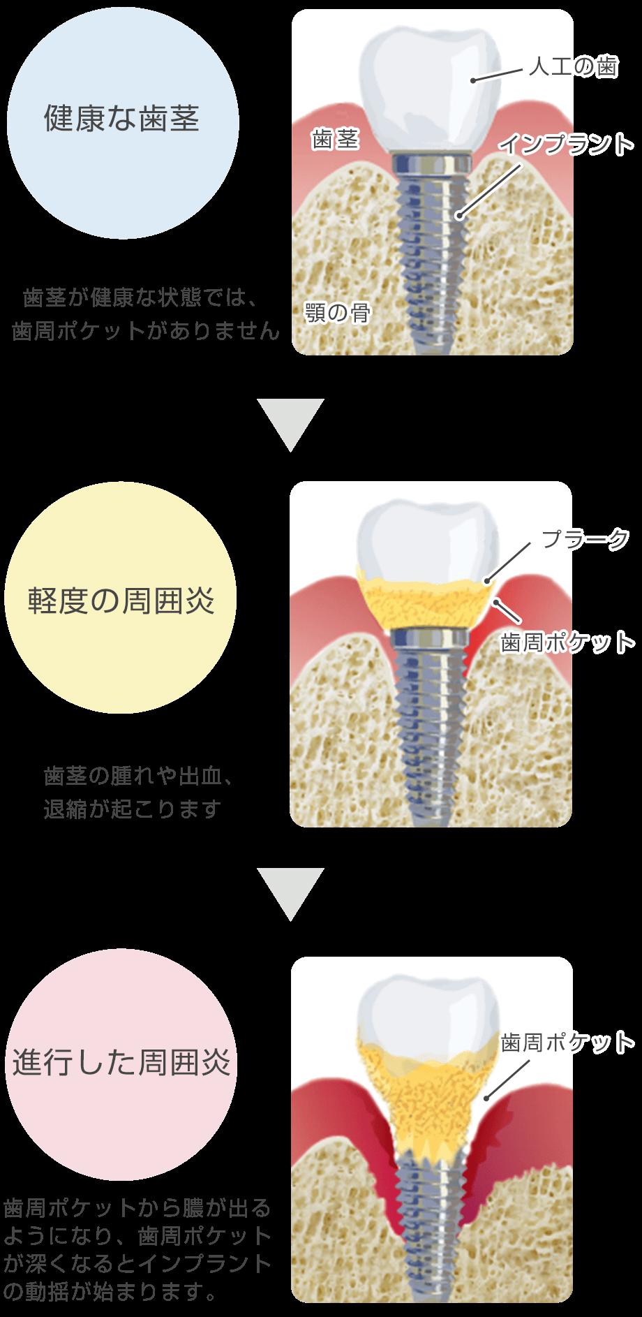 インプラント周囲炎の進行度と症状