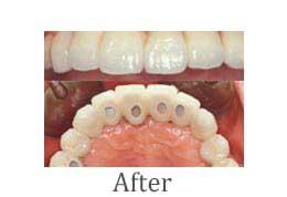 上顎にインプラントを6本埋入し、連結した歯を装着